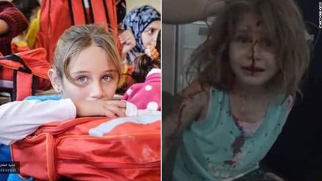 空爆で負傷したシリアの少女 胸に迫る泣き顔の映像が拡散
