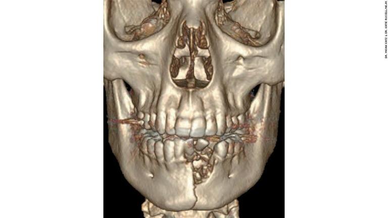 電子たばこの爆発により、米国の17歳少年があごの骨を粉砕する傷を負った/Dr. Micah Katz & Dr. Katie Russell/NEJM