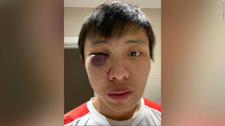 CNN.co.jp : 東アジア系留学生、ロンドンで集団暴行の被害 新型 ...