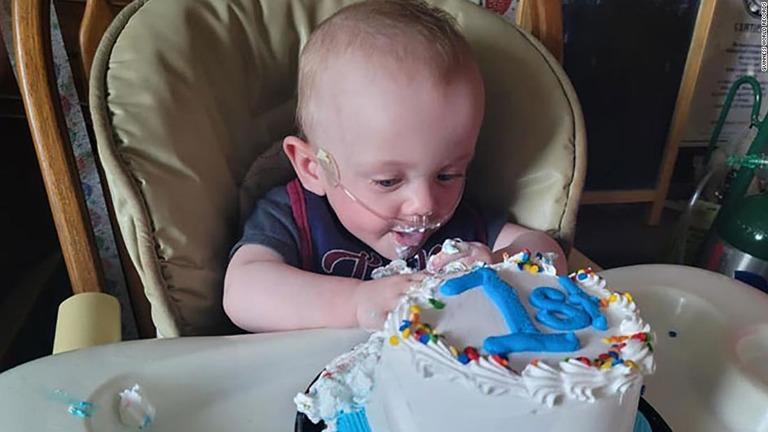 「世界一の超早産」で生まれた赤ちゃん、1歳の誕生日を迎える 米